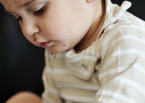 Neurodermitis beim Säugling, Baby und Kleinkind - was tun?