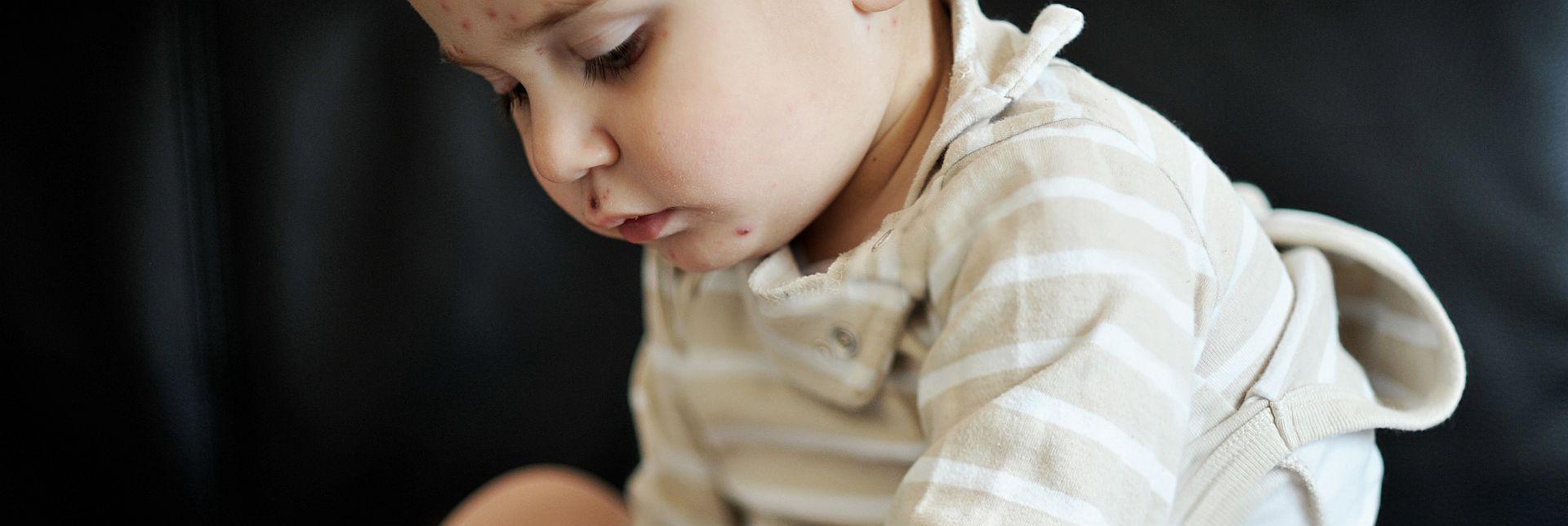 Neurodermitis bei Baby