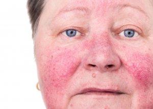 Rosazea - Ursachen, Symptome und Behandlung