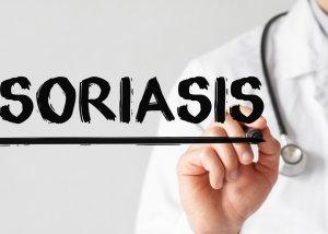 Psoriasis - Ursachen und Behandlungsmöglichkeiten